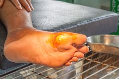 Diabetes ulcers foot. Infected wound of diabetic foot Stock Photos