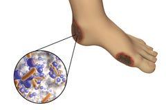 Diabetesvoetbesmetting met close-upmening van bacteriën Stock Afbeelding
