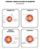 Diabetic Eye Diseases diagram Royalty Free Stock Image