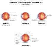Diabetic Eye Diseases Stock Photography