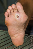 Diabetic foot. Infected wound of diabetic foot royalty free stock photo