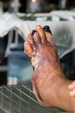 Diabetic foot. Infected wound of diabetic foot Stock Photo