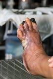 Diabetic foot Stock Photo
