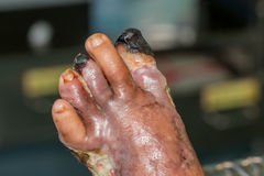 Diabetic foot. Infected wound of diabetic foot royalty free stock photos