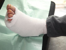 Diabetic foot injury Royalty Free Stock Photo