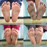 Diabetic foot testing. Diabetic foot collection, foot screen in diabetes patient royalty free stock photos
