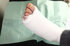 Diabetic man with foot infections. A man with a bandaged diabetic foot infection and toenail fungus stock photos