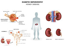 Diabetic Nephropathy, kidney disease Royalty Free Stock Photo