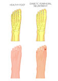Diabetic Peripheral Neuropathy. Illustration of Diabetic Peripheral Neuropathy. Healthy foot and foot with damaged nerves and ulcers on the toes. Used Stock Images