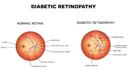 Diabetic retinopathy Royalty Free Stock Photos