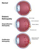 diabetisk retinopathy Arkivfoton