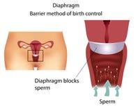 Diafragma anticonceptivo del método Imagen de archivo