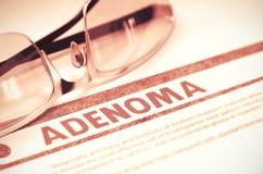 Diagnóstico - adenoma Conceito da medicina ilustração 3D Foto de Stock Royalty Free