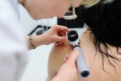 Diagnóstico da melanoma o doutor examina o patient& x27; toupeira de s Fotografia de Stock