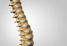 Diagnóstico de la espina dorsal Imágenes de archivo libres de regalías