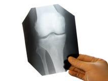 Diagnósticos de la rodilla de la radiografía Fotografía de archivo