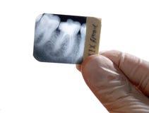 Diagnósticos de los dientes de la radiografía Imagen de archivo libre de regalías