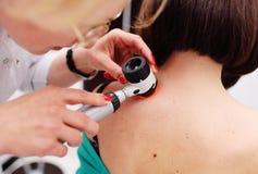 Diagnoinspectionsis de mélanome le docteur examine la taupe patiente du ` s images libres de droits