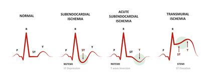Diagnos av Myocardial Ischemia vektor illustrationer