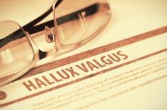 Diagnos - Hallux Valgus MEDICINSKT begrepp illustration 3d Royaltyfria Foton