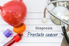Diagnose van Prostate Kanker Medisch conceptenbeeld van diagnose prostate kanker met anatomisch model van blaas met voorstanderkl stock foto's