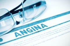 Diagnosis - angina Concepto de la medicina ilustración 3D fotos de archivo