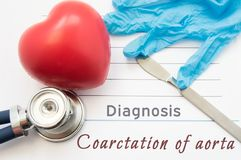 Diagnosis Coarctation of Aorta. Figure heart, stethoscope, surgical scalpel and gloves are near title Coarctation of Aorta. Concep Royalty Free Stock Photography