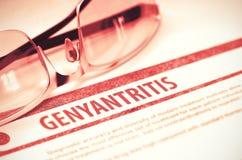 Diagnosis - Genyantritis. Medical Concept. 3D Illustration. Royalty Free Stock Photo