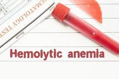 Diagnosis Hemolytic Anemia. Notepad with text labels Hemolytic Anemia, laboratory test tubes for the blood, blood smear for micros. Copy, and results of stock photo