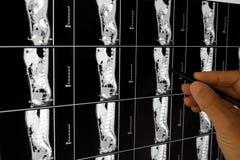 Diagnosis médica de la radiografía Foto de archivo libre de regalías