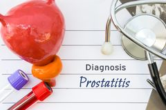 Diagnosis of Prostatitis. Medical concept picture of prostate disease Prostatitis with anatomical model of bladder with prostate,. Stethoscope, ultrasound stock photos