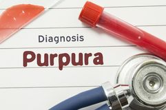 Diagnosis of Purpura. Medical book with text header hematological diagnosis Purpura lies on doctor table surrounded by laboratory. Test tubes with blood, glass Royalty Free Stock Image