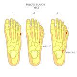Diagnosis of the tailor's bunion Royalty Free Stock Photography