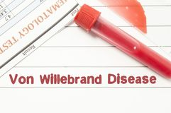 Diagnosis Von Willebrand Disease. Notepad with text labels Von Willebrand Disease, laboratory test tubes for the blood, blood smea. R for microscopy, and results stock photo