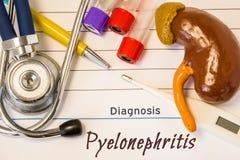 DiagnosPyelonephritisfoto Diagramet av njuren ligger bredvid incriptionen av diagnosen av pyelonephritis, den digitala termometer Fotografering för Bildbyråer