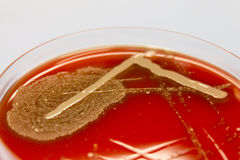 Diagnostic bacterial culture on red agar Royalty Free Stock Photo