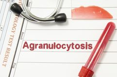Diagnostic d'Agranulocytosis Bouteille de sang de laboratoire, plaque en verre avec la calomnie de sang, essai de hématologie, st Photo libre de droits