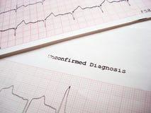 Diagnostic non confirmé d'ECG Images libres de droits