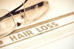Diagnostic - perte des cheveux stéthoscope réglé d'argent de médecine de mensonges de concept illustration 3D Photos libres de droits