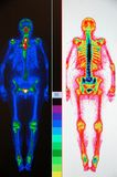 Nuclear medicine whole body scan royalty free stock image