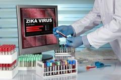 DiagnosZika virus doktorshänder som undersöker en blodprövkopia Royaltyfri Bild
