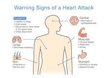 Diagram au sujet des panneaux d'avertissement d'une crise cardiaque Photos stock