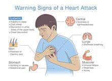 Diagram au sujet des panneaux d'avertissement d'une crise cardiaque illustration stock
