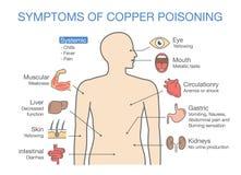 Diagram av de huvudsakliga tecknen av kopparförgiftning Arkivbilder