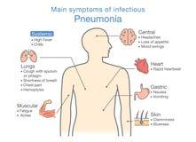 Diagram av huvudsakliga tecken av smittsam lunginflammation Royaltyfri Bild