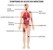 Diagram die symptomen van scherpe HIV besmetting tonen Royalty-vrije Stock Foto