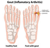 Diagram explanation of Gout in human foot Royalty Free Stock Image