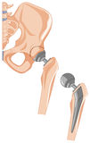 Diagram of hip bone treatment Royalty Free Stock Image