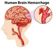 Diagram of human brain hemorrhage Stock Photos