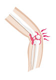 Diagram of an injured leg and joint. Isolated Editable Clip Art. Stock Images